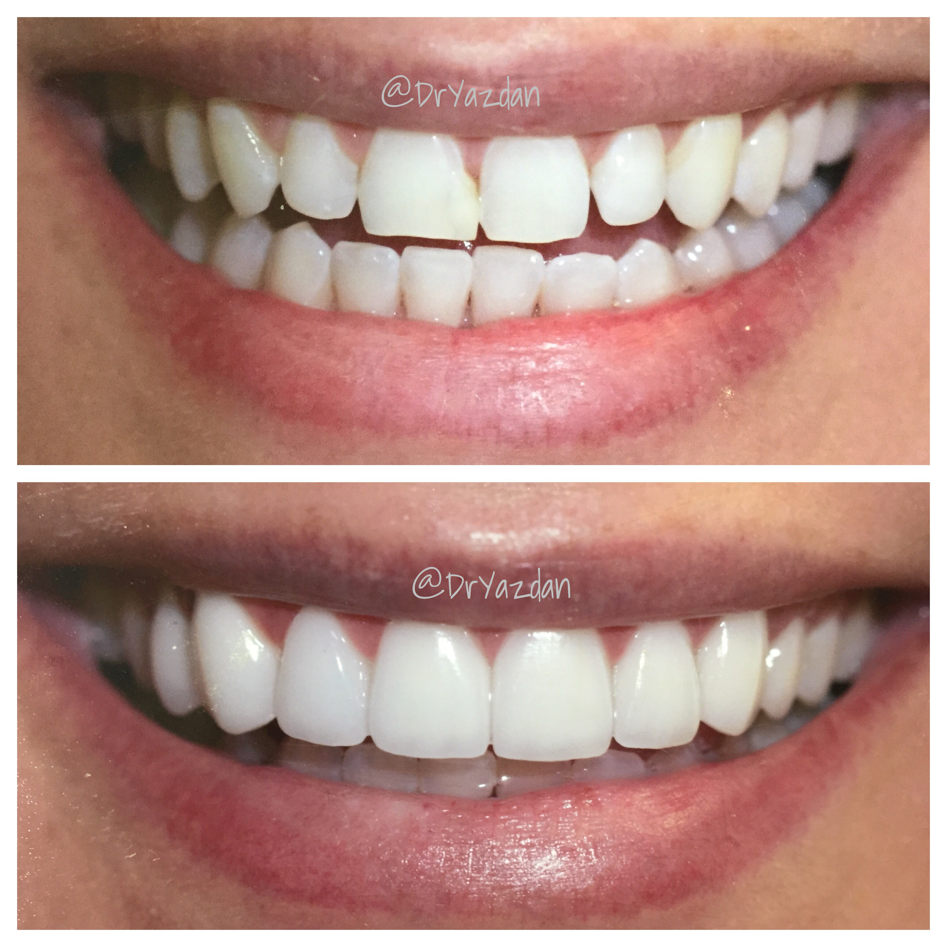 How to Care for Your New Dental Veneers - Center for Restorative