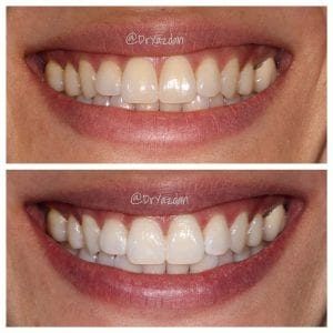 Teeth Whitening Orange County