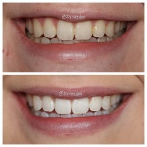 Teeth Whitening Newport Beach