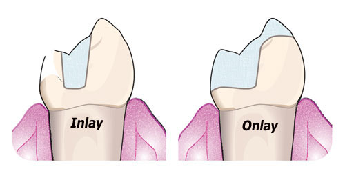 Inlay and Onlay Tooth Restoration - Newport Beach Dentist