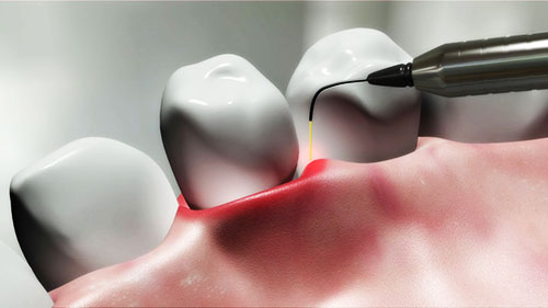 Laser-Dentistry-Orange-County