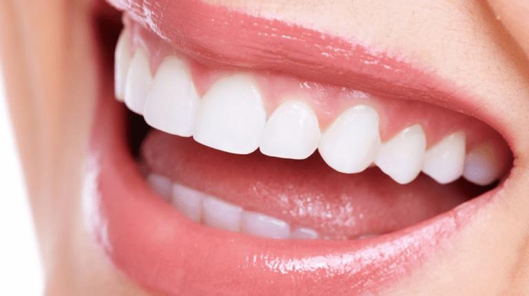 smile dentist newport beach