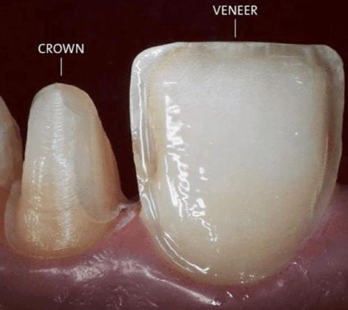 veneer vs crown ile ilgili görsel sonucu.تلبيس الأسنان في تركيا
