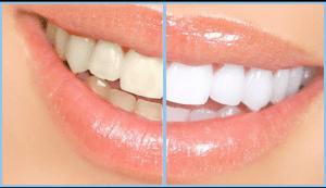 Smile - Whitening