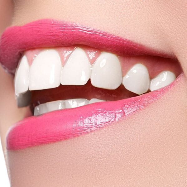 cosmetic-dentistry-newport-beach-orange-county