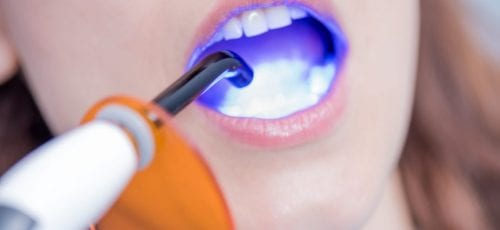 dental-bonding-orange-county