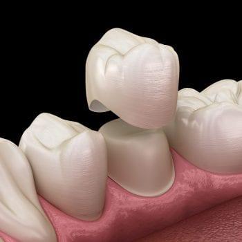 dental-crowns-newport-beach