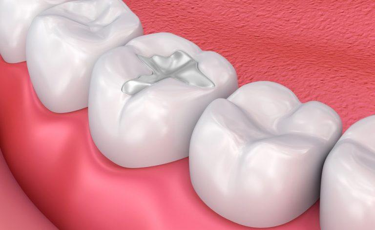 dental-fillings-newport-beach