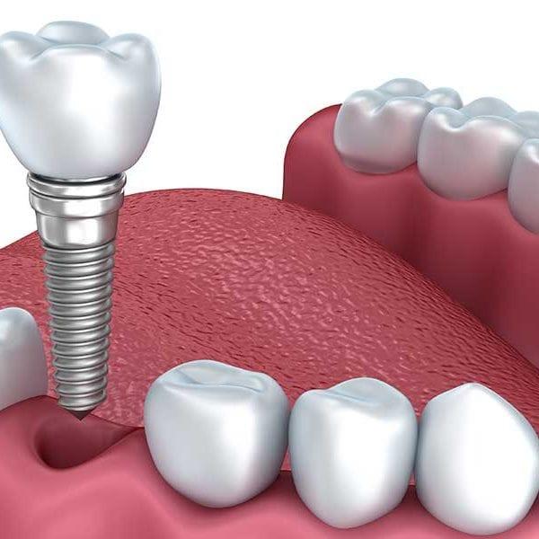 dental-implant-newport-beach