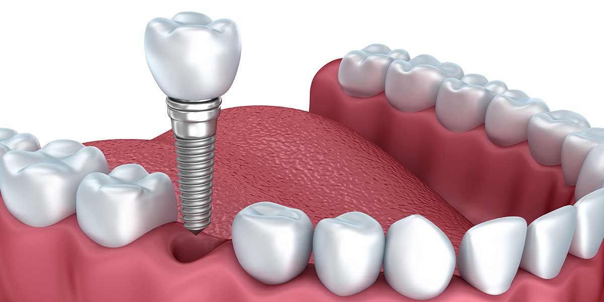 dental-implant-newport-beach