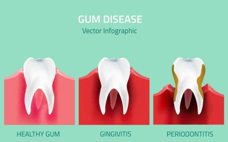 gum disease differences