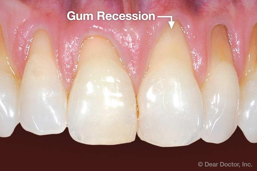 gum-recession