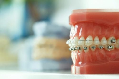orthodontics-newport-beach