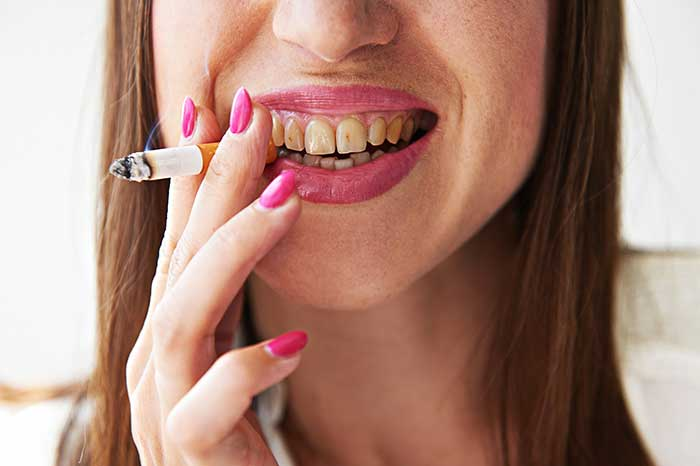 smoking-stained-teeth