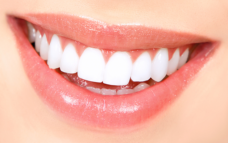Teeth Whitening Orange County
