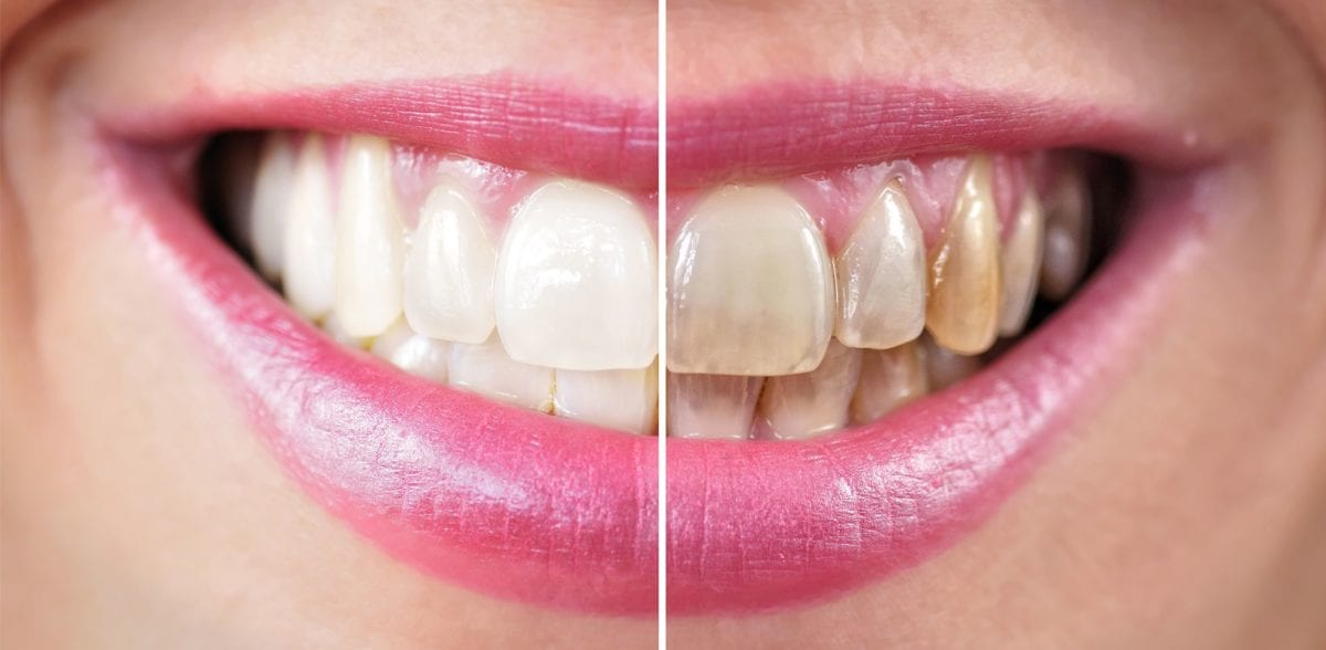 teeth-whitening-newport-beach-orange-county