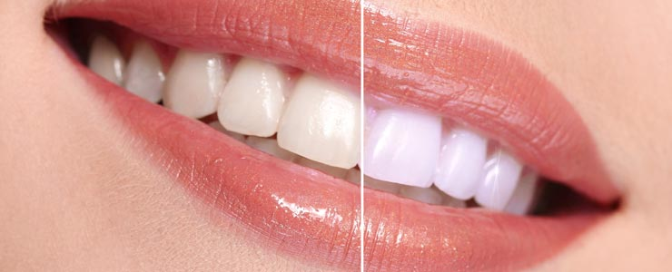 teeth-whitening-orange-county