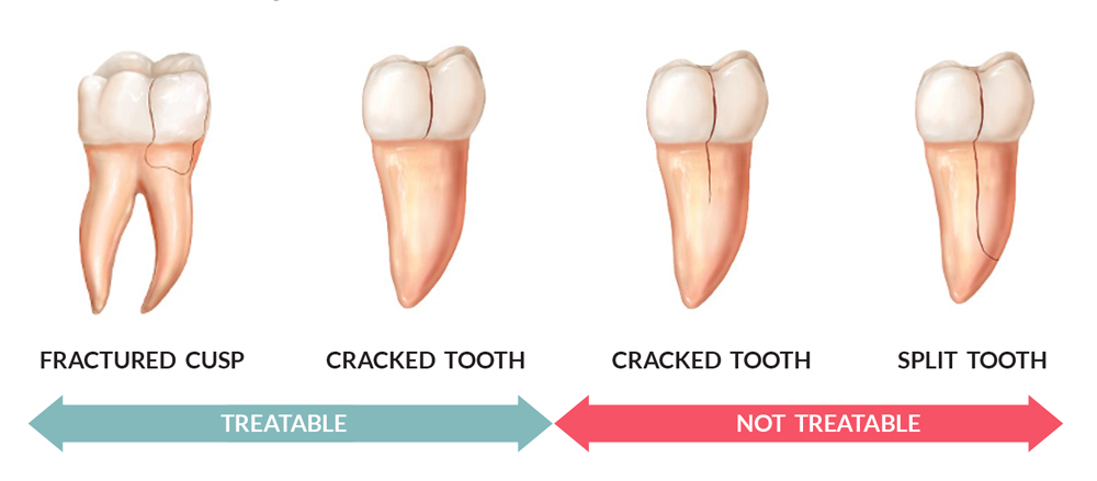 types-Cracked-tooth-1