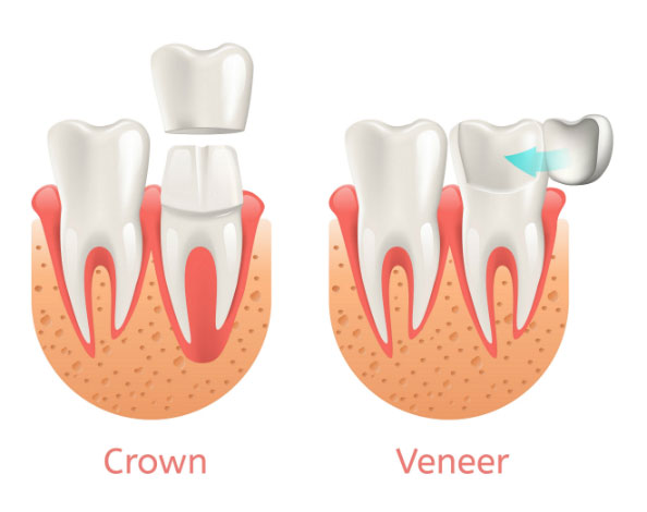 veneers-vs-crowns-newport-beach