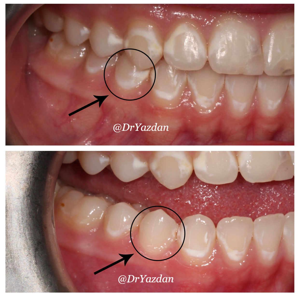 Icon White Spot Removal On Teeth Dr Desiree Yazdan Newport Beach