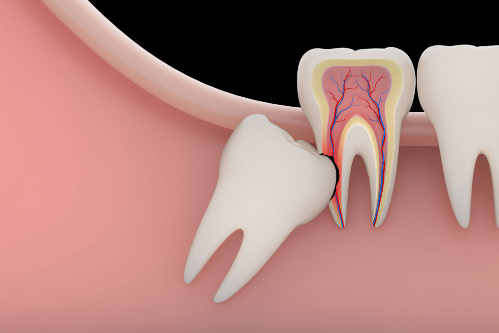 wisdom-teeth-removal-newport-beach
