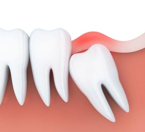 wisdom tooth extraction orange county