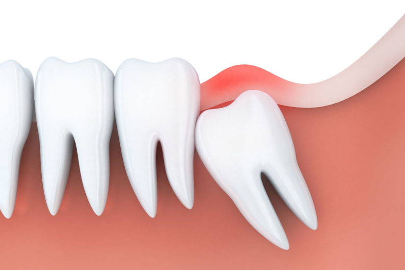 wisdom tooth extraction orange county